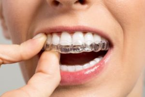Invisible Braces in Hyderabad