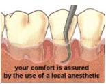 Oral Irrigation Treatment